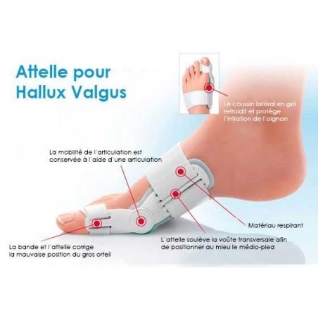 Hallufix description : Orthèse pour hallux valgus avec articulation