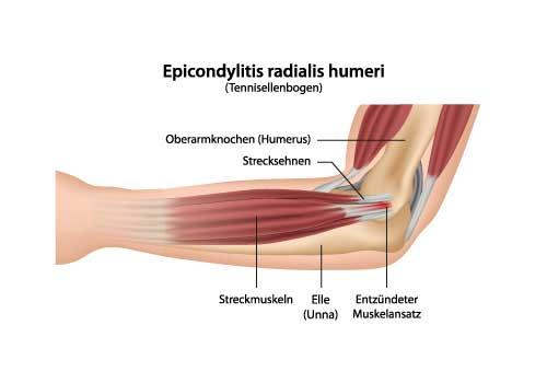 Epicondylitis-DE.jpg